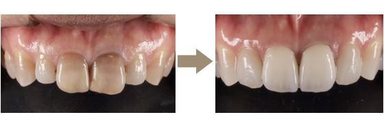 四街道市の歯医者さん、セラミック治療