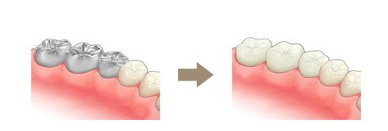 四街道市の歯医者さん、銀歯を白く!
