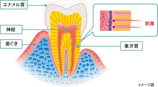 千葉市・四街道市の歯医者さん、知覚過敏イメージ