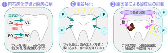 千葉市・四街道市の歯医者さん、マイナス1才からのむし歯予防