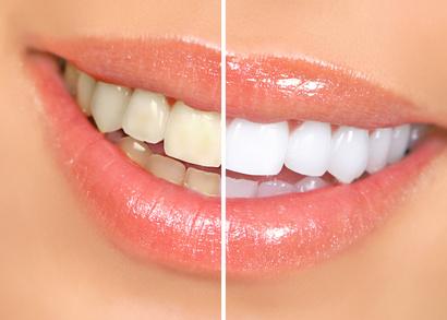 千葉市・四街道市の歯医者さん、ホームホワイトニング