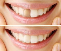 千葉市・四街道市の歯医者さん、神経の死んだ歯を白く、ウォーキングブリーチ